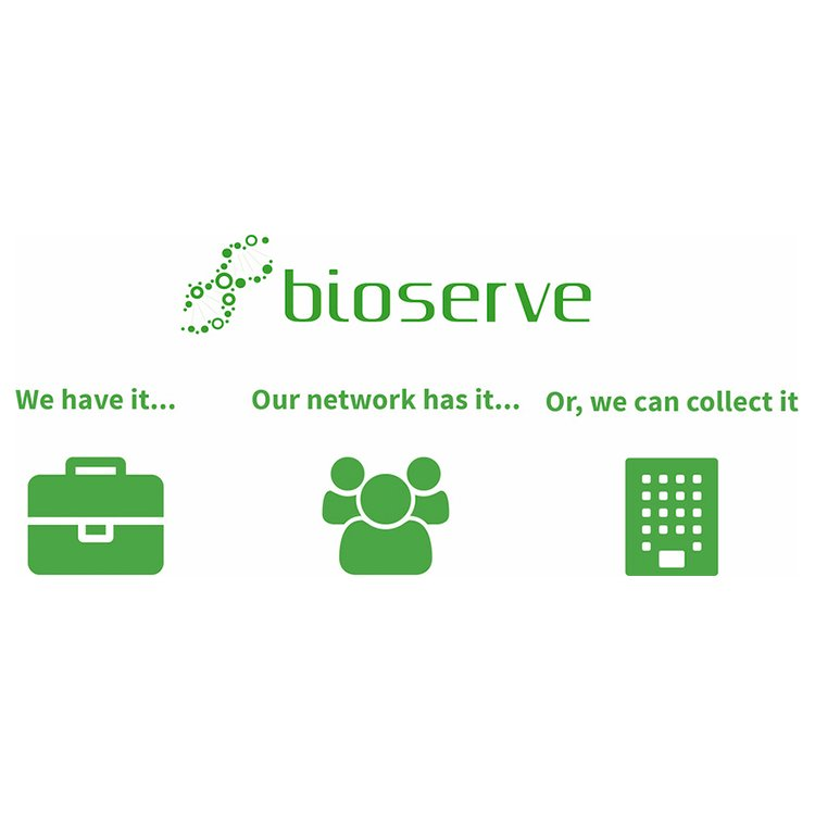 İnsan Doku Örneklerinin Küresel Biyopozisyonu Bioserve